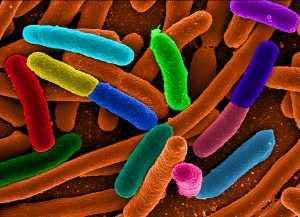 Diverse E.coli